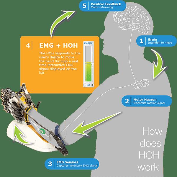 Hand of Hope via Rehab-Robotics