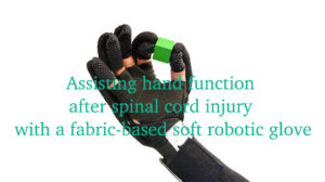 """An Italian researcher develops a low-cost robotic device to """"lend a hand"""" to people with motor disabilities."""